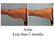 liposuction arms