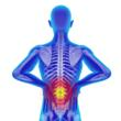 Stem Cell Injection Clinical Trial Under Way for Low Back Pain at...