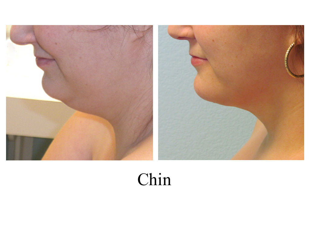 Chin lipo : Dry brushing body