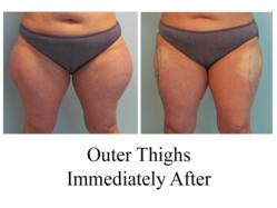 Amazing liposuction results