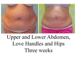 large volume liposuction, liposuction of abdomen, liposuction before and after