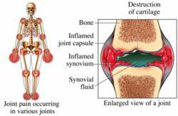Rheumatoid Arthrits