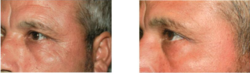 Men and Women can look younger with Beau Visage