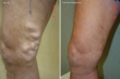 Varicose Vein Treatment Blog Launched by Vein Specialists of the South