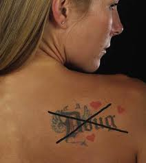 tattoo removal, laser tattoo removal, tattoo regret