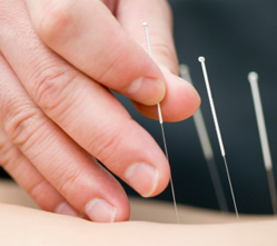 Using tiny needles inserted into the skin and muscle layers can greatly affect all body systems, and is very effective in pain management.