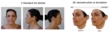 Facial Aesthetic patients can now see what they could look like after...