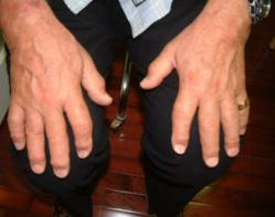 gI 62129 fi Cell Therapy is now being used for Arthritis of Fingers at the Center for Regenerative Medicine