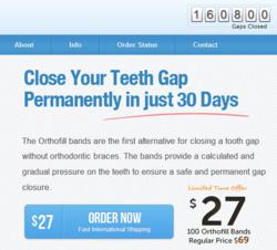 Orthofill Closes 160,000 Teeth Gaps