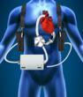 Left Ventricular Assist Devices Replaced by SynCardia Total Artificial...