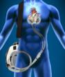 LVAD, left ventriculart assist device, artificial heart, total artificial heart, SynCardia, Michael Garippa, heart failure, donor heart, heart transplant