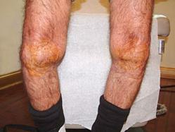 gI 64313 knee 1 Knee Pain is Now Being Treated with Regenerative Medicine at The Center for Regenerative Medicine