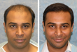 Bernstein Medical Patient Before & After Hair Transplant Procedure