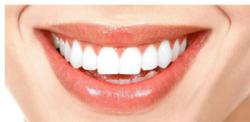 Crown Work, Family Dentist, General Dentistry, Partial Dentures, Simple Extractions, Teeth Whitening