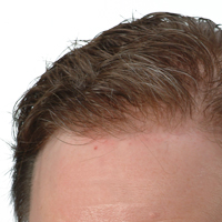 HIgh Definition Hairline, Hair System