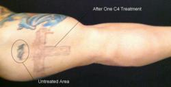 C4 laser tattoo removal with half the pain and half the time for Free tattoo removal denver