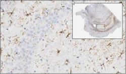 Histopathology evaluation with digital pathology and whole slide imaging in astrocytes or activated microglia