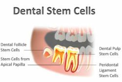 Dental Stem Cell Banking in Middletown NJ