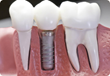 How to Afford High Prices of Dental Implants? Dr. Kanani DDS. a...