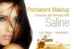 Las Vegas Saline Tattoo Removal