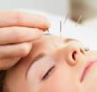 Nicole Cutler, L..Ac., MTCM addresses common acupuncture concerns and put them to rest