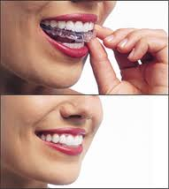 Invisalign Clear Braces By Woodland Hills Cosmetic Dentist Dr. Kanani for $299
