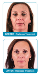 Radiesse, Pure Med Spa, Jeff Nourse, Dermal Fillers, Injectables, Botox, Younger, Rejuvinating