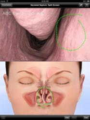 patient education, ENT, LUMA, iPad, iPad apps, audiology, otolaryngologist, ear nose throat, otolaryngology, balloon sinuplasty, sinusitis