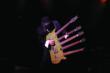 Rick Nielsen and his Hamer 5-Neck Guitar