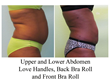abdominal liposuction, trevor schmidt pa-c, trevor schmidt, effects of liposuction