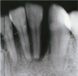 Dr. Kanani, Woodland Hills Dentist: Tooth Loss and Job Prospects