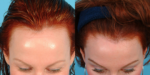 Female hairline lowering - before & after