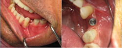 Flap-less and Drill-less dental implant procedure