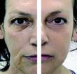 Non Invasive facelift