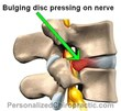 Can a Chiropractor Help with a Herniated Disc