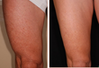 Exilis procedure for thigh