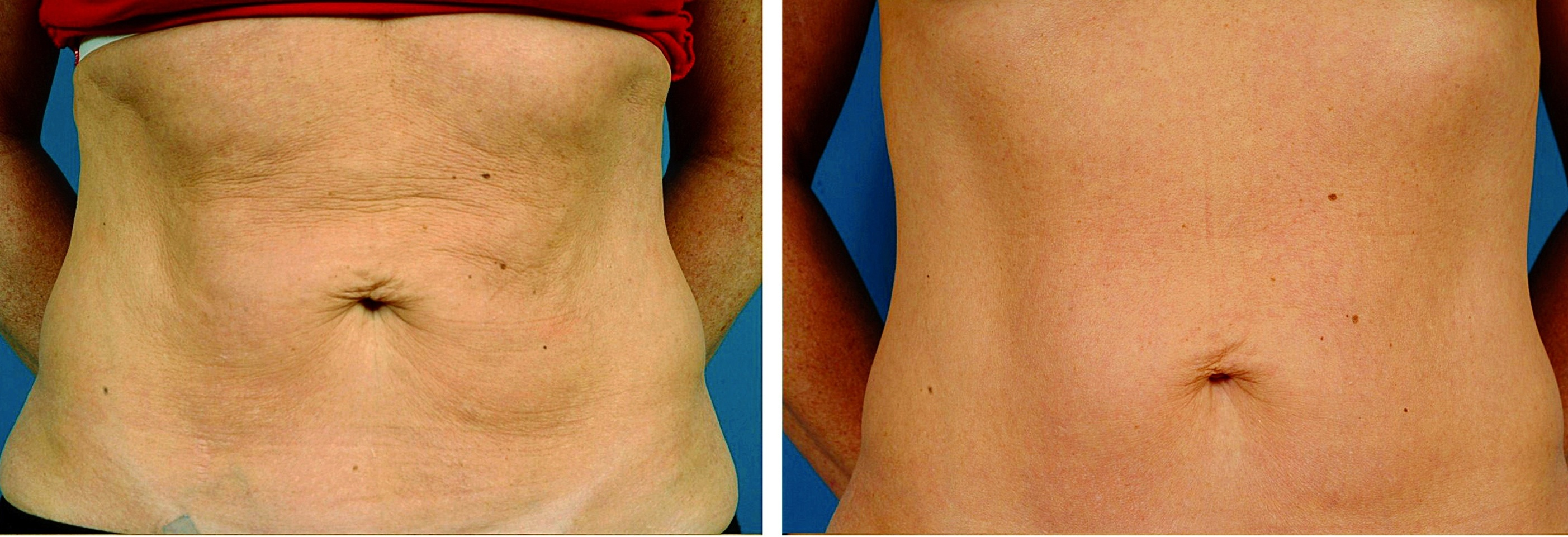 Lipocontour Body Shaping With Low Level Laser Light Is The