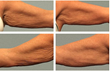 Tighten Loose skin on arms