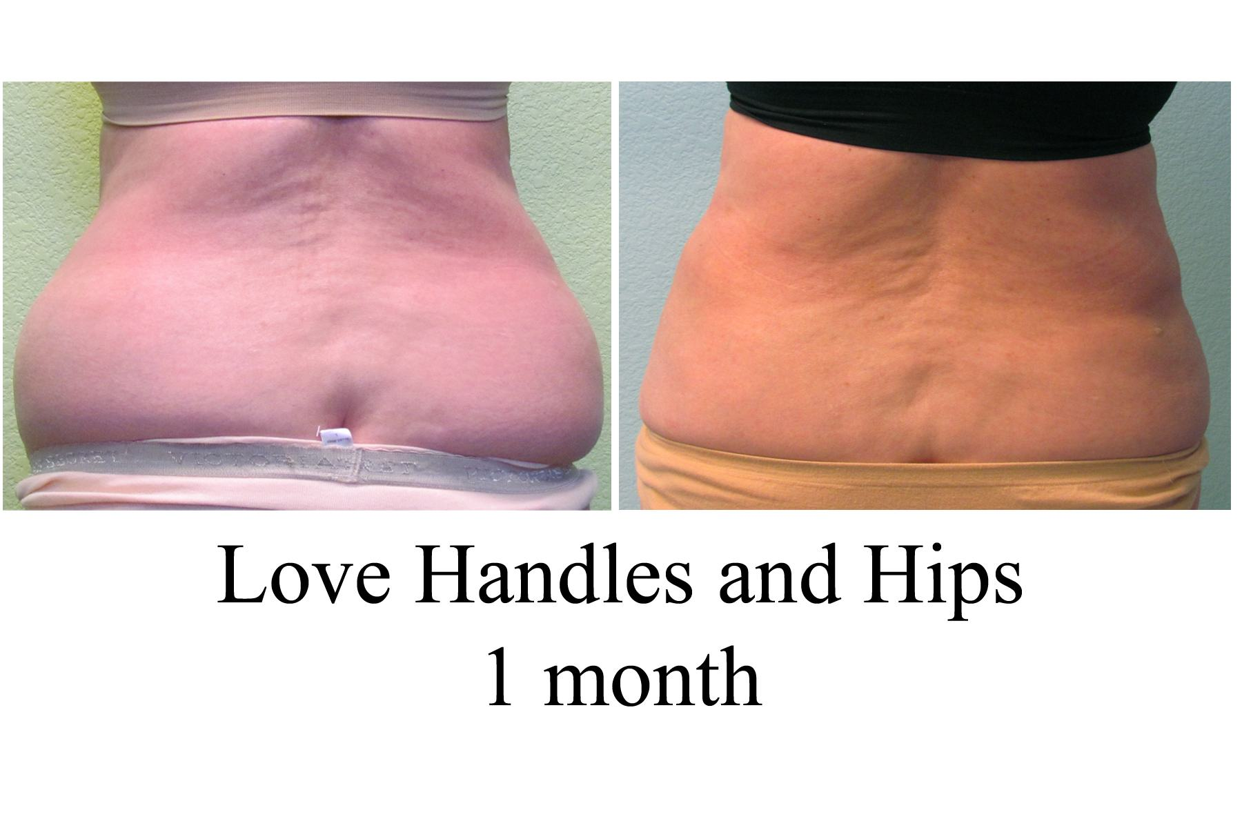 how to reduce love handles and hips