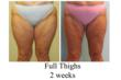 thigh liposuction, tumescent liposuction, lipo, affordable liposuction, liposuction contest, free liposuction