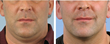 Man chin and neck non-surgical fat reduction