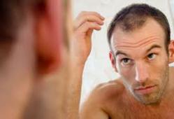 Hair Loss Prevention | Regrow Lost Hair E-Book