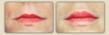 dr davie lips