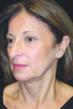 Face Lift, Facelift, Mini Facelift QuickLift, Skin Tightening
