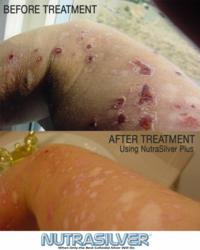 Morgellons treatment, morgellons cure