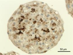 3D InSight human liver microtissue section stained for Kupffer cell marker protein CD68 (dark brown). Nuclei are depicted in light blue.
