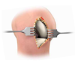Unicompartmental Arthroplasty