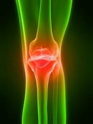 Zimmer NexGen Knee: severe complications threat