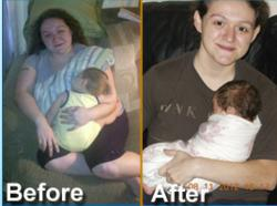Gastric Bypass Surgery Patient Kathryn and her Successful Pregnancy