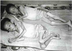 Starving Children In North Korea